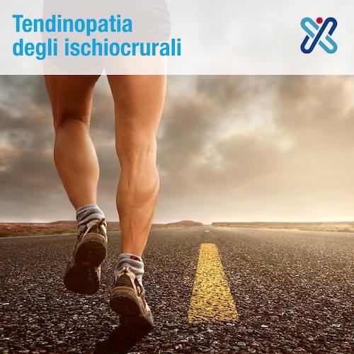 tendinopatia degli ischiocrurali